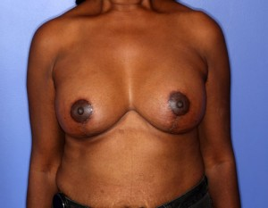 Breast Augmentation with Lift patient after