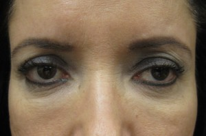 Brow Lift patient before