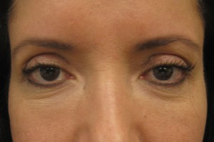 Brow Lift patient after
