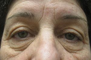 Blepharoplasty patient before