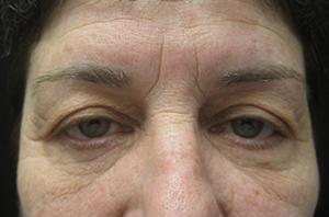 Blepharoplasty patient after
