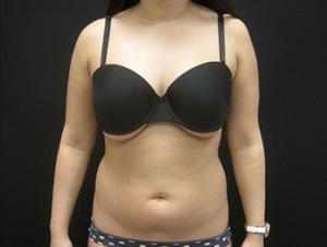 Liposuction patient before