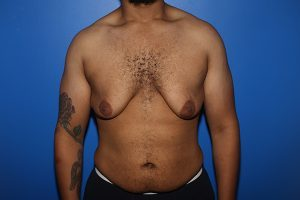 Before male breast reduction in NYC