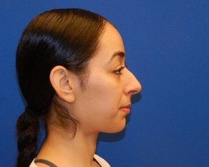 Before rhinoplasty in NYC with Dr. Cangello