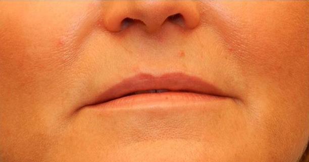 Lip Augmentation patient before