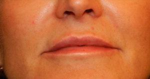 NYC lip augmentation results