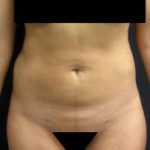 Results of abdominal lipo in NYC with Dr. Cangello