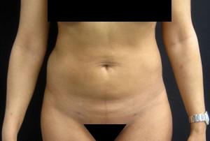 Liposuction patient after