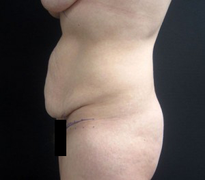 Tummy Tuck patient before