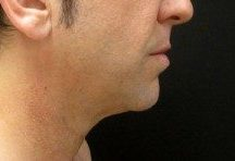 Male patient before chin augmentation