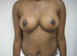 Results of NYC breast reduction surgery