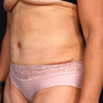 Dr. Cangello Tummy Tuck Procedure After Picture 1