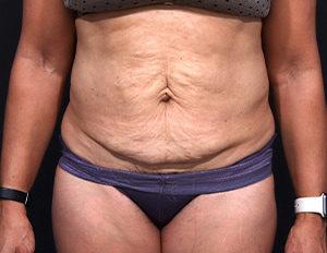 Dr. Cangello Tummy Tuck Procedure Before Picture 1